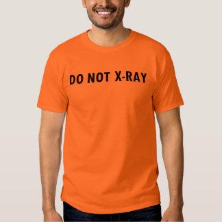 x-ray tshirts