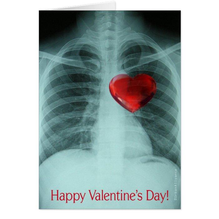 X-ray Valentine's Card