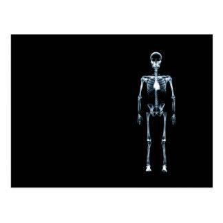 X-Ray Vision Blue Single Skeleton Post Card