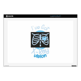 X-Ray Vision Laptop Decal