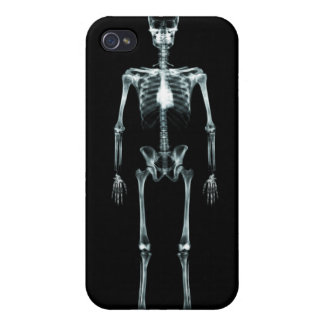 X-Ray Vision Single Skeleton - Black Original iPhone 4 Covers