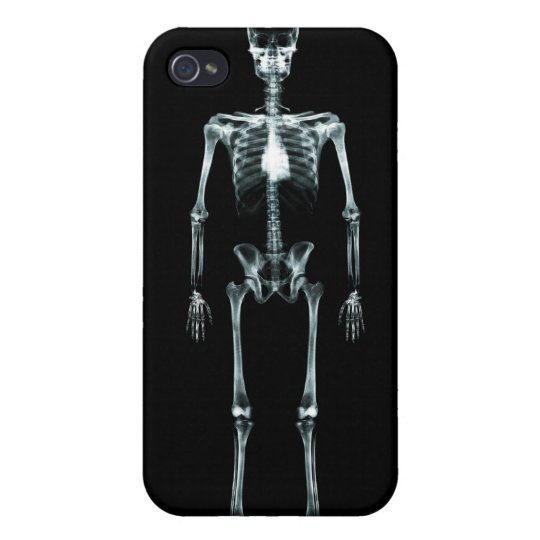 X-Ray Vision Single Skeleton - Black Original iPhone 4 Covers