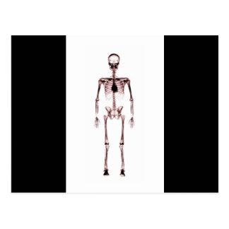 X-Ray Vision Single Skeleton White Red Postcard