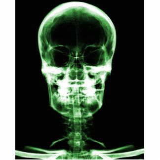 X-RAY VISION SKELETON SKULL - GREEN CUTOUT