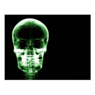 X-RAY VISION SKELETON SKULL - GREEN POSTCARD