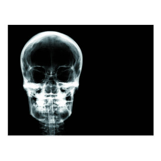 X-RAY VISION SKELETON SKULL - ORIGINAL POSTCARD