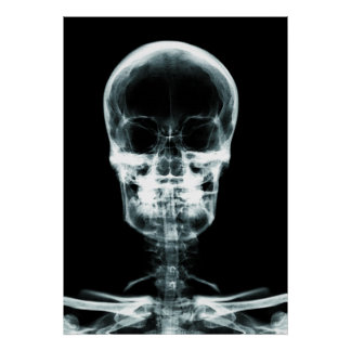 X-RAY VISION SKELETON SKULL - ORIGINAL POSTER