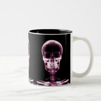 X-RAY VISION SKELETON SKULL - PINK Two-Tone COFFEE MUG
