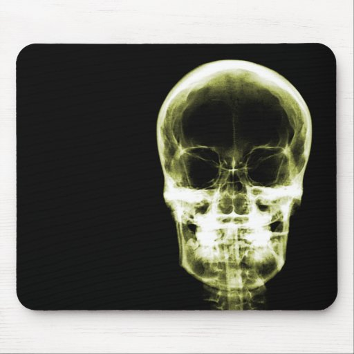 X-RAY VISION SKELETON SKULL - Yellow Mouse Pad