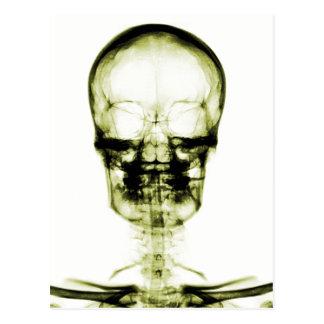 X-RAY VISION SKELETON SKULL - YELLOW POSTCARD