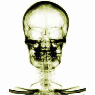 X-RAY VISION SKELETON SKULL - YELLOW STATUETTE