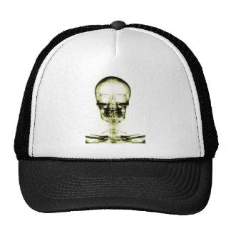 X-RAY VISION SKELETON SKULL - YELLOW TRUCKER HAT