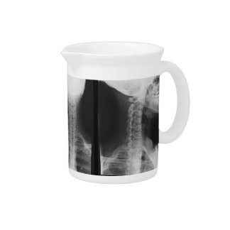 X-rayed 2 drink pitchers