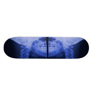 X-rayed 2 - Electromagnetic Blue Skateboard Deck