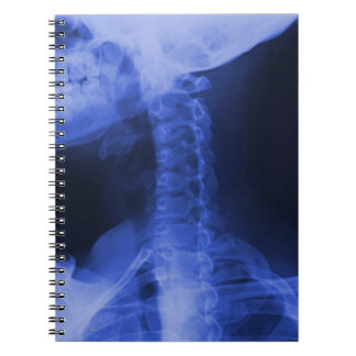 X-rayed 2 - Electromagnetic Blue Spiral Notebook