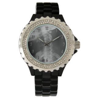 X-rayed 2 (Original) Wristwatch