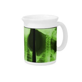 X-rayed 2 - Radioactive Green Drink Pitchers