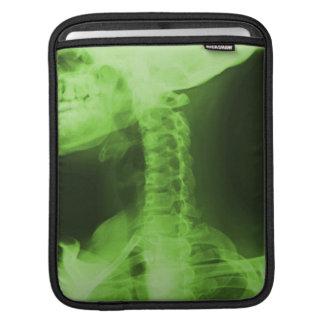 X-rayed 2 - Radioactive Green iPad Sleeves