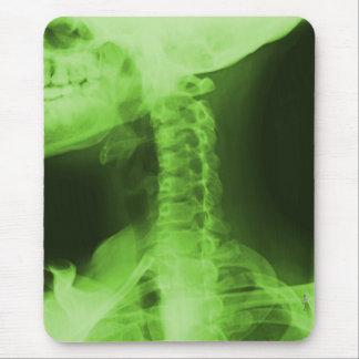 X-rayed 2 - Radioactive Green Mouse Pad