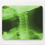 X-rayed 2 - Radioactive Green Mousepad