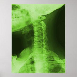 X-rayed 2 - Radioactive Green Poster