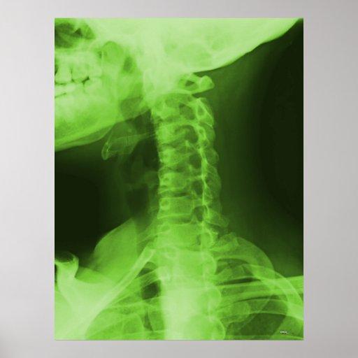 X-rayed 2 - Radioactive Green Print