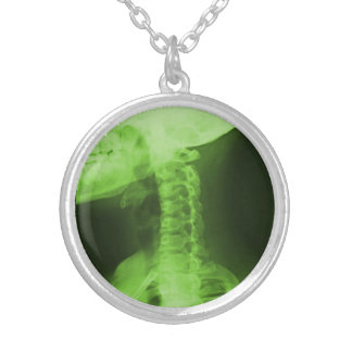 X-rayed 2 - Radioactive Green Silver Plated Necklace