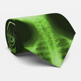 X-rayed 2 - Radioactive Green Tie