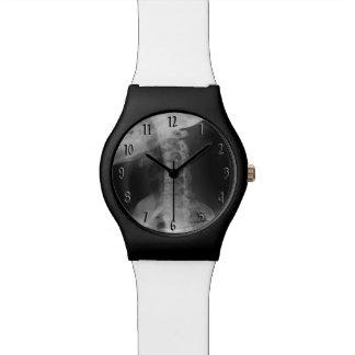 X-rayed 2 wristwatches