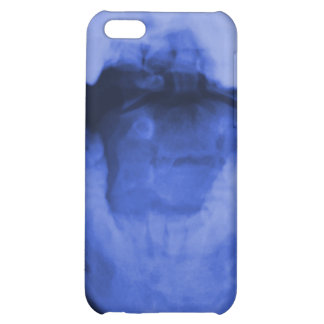 X-rayed 3 - Electromagnetic Blue iPhone 5C Covers