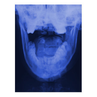 X-rayed 3 - Electromagnetic Blue Postcard
