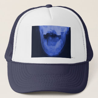 X-rayed 3 - Electromagnetic Blue Trucker Hat