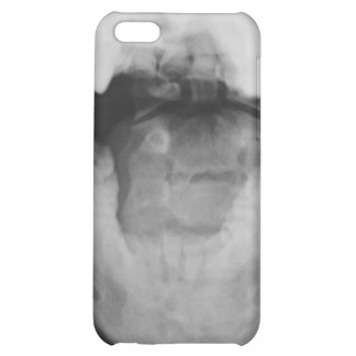 X-rayed 3 case for iPhone 5C