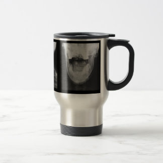 X-rayed 3 mug
