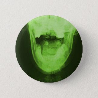 X-rayed 3 - Radioactive Green Button
