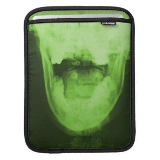 X-rayed 3 - Radioactive Green iPad Sleeve