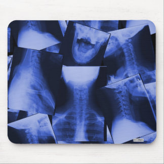 X-rayed - Electromagnetic Blue Mouse Pad