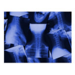 X-rayed - Electromagnetic Blue Postcard