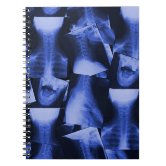 X-rayed - Electromagnetic Blue Spiral Notebook