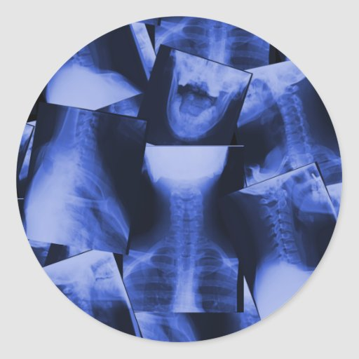 X-rayed - Electromagnetic Blue Round Stickers
