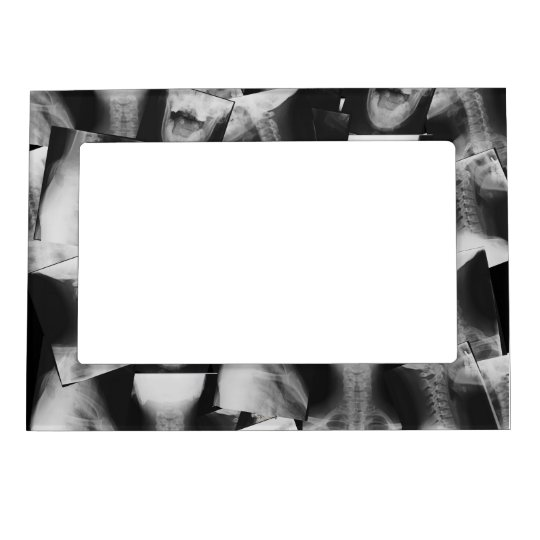 X-rayed Magnetic Picture Frame