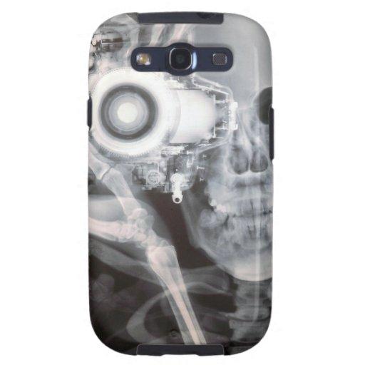 X-Rayed Photographer Samsung Galaxy S3 Cover
