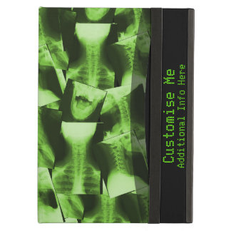 X-Rayed - Radioactive Green Case For iPad Air