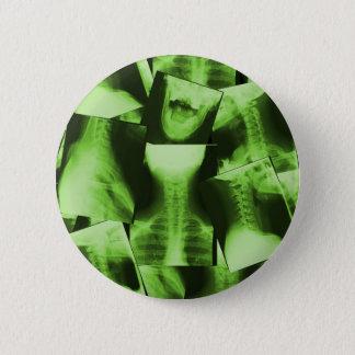 X-rayed - Radioactive Green Pinback Button