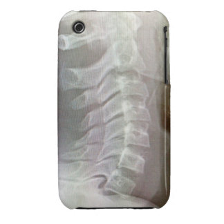 Xray cervical spine iphone cover iPhone 3 case