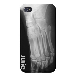 xray foot unique 4 casing iPhone 4 case