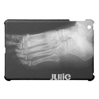 xray foot unique casing case for the iPad mini