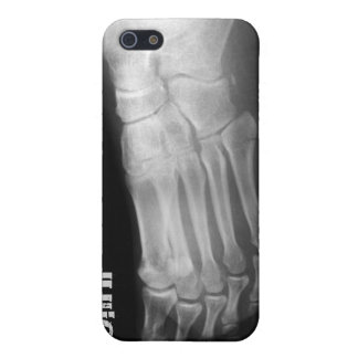 xray foot unique Iphone4 casing iPhone SE/5/5s Cover