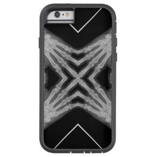 Xray hands iPhone 6 case