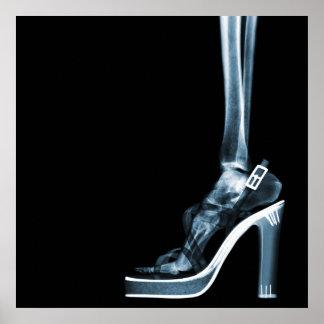 XRAY HIGH HEEL LADY SKELETON FOOT  BLUE POSTER